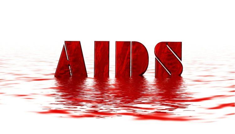Kiedy zrobić test w kierunku HIV?